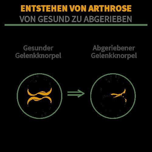 Bei der Entstehung von Arthrose schwindet die Knorpelsubstanz